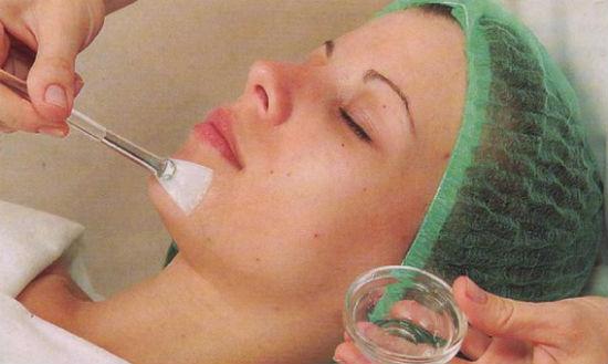 Пилинг лица хлористым кальцием